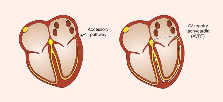 EP Study | Heart Rhythm Clinic