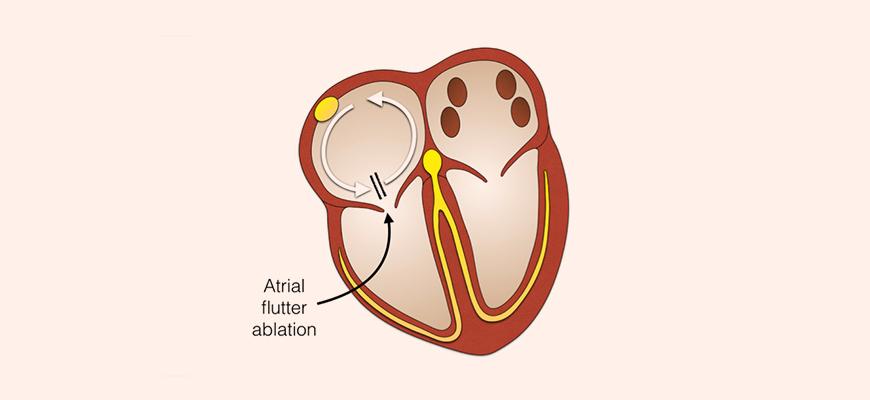 Atrial Flutter Ablation | Heart Rhythm Clinic